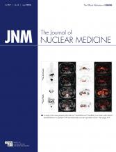 Journal of Nuclear Medicine: 57 (4)