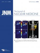 Journal of Nuclear Medicine: 57 (5)