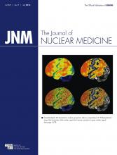 Journal of Nuclear Medicine: 57 (7)