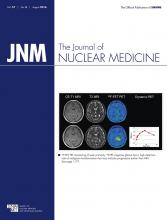 Journal of Nuclear Medicine: 57 (8)
