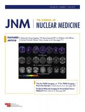 Journal of Nuclear Medicine: 58 (5)