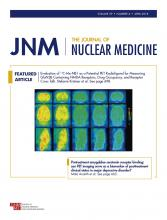 Journal of Nuclear Medicine: 59 (4)